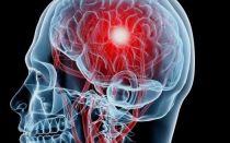 Трепанация черепа и операция по удалению гематомы — последствия оперативного вмешательства