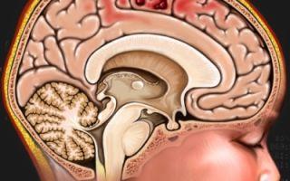 Ушиб головного мозга у детей и взрослых: степени, симптоматика и лечение