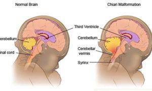 Что такое синдром Арнольда-Киари?
