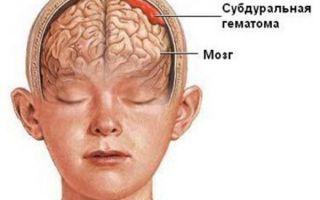 Субдуральная гематома головного мозга — симптомы и последствия операции по ее удалению