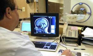 Что покажет магнитно-резонансная томография головы?