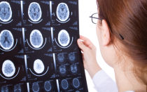 Ретроцеребеллярная киста головного мозга: чем опасна и чего нельзя делать?