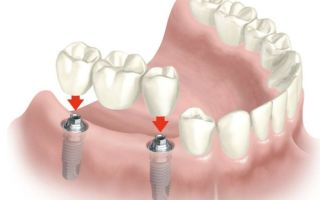 Имплантация зубов в стоматологии на Академической – восстановление потерянной улыбки