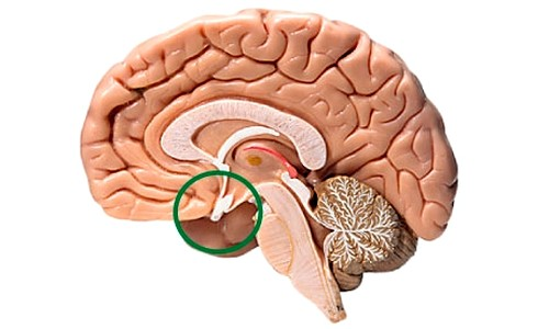 Аденома гипофиза в мозге