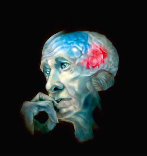 Старик с разноцветным мозгом