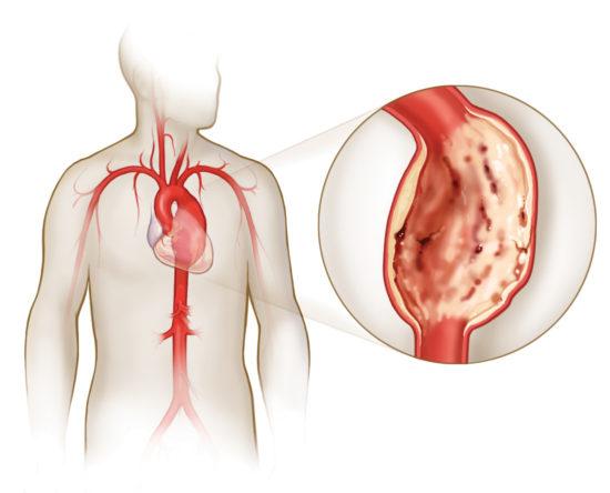 Как выглядит аневризма сердца?