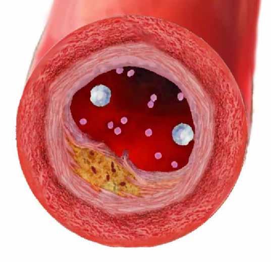 Атеросклеротические бляшки в сосуде