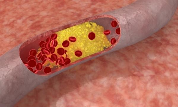 Церебральный атеросклероз сосудов