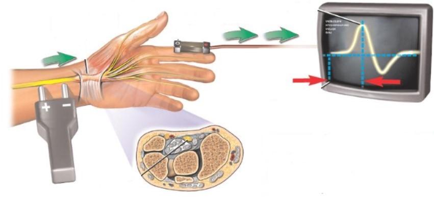 Механизм проведения ЭНМГ