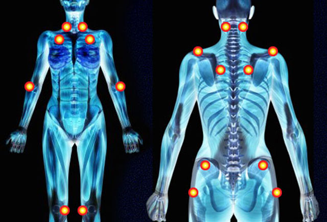 Фибромиалгия на теле человека