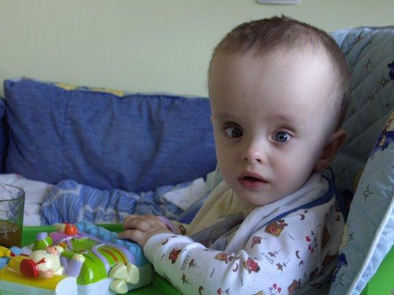 Мальчик с гидроцефалией