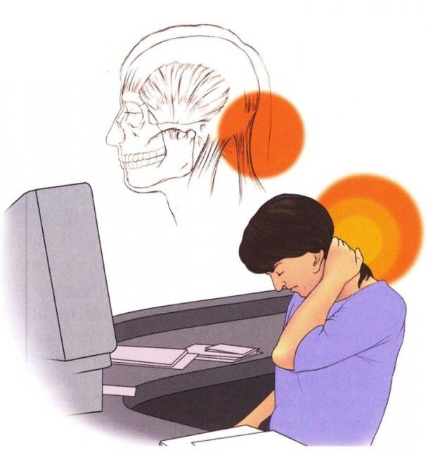Боль в затылке головы