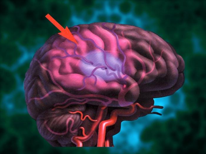 Инсульт мозга справа