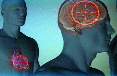 Инсульт мозга и инфаркт
