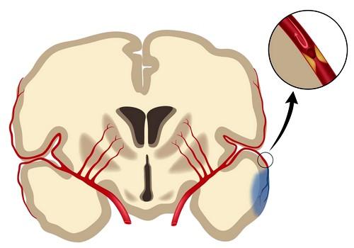 Сосуды мозга при ишемии