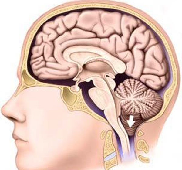 Does chiari malformation effect adults