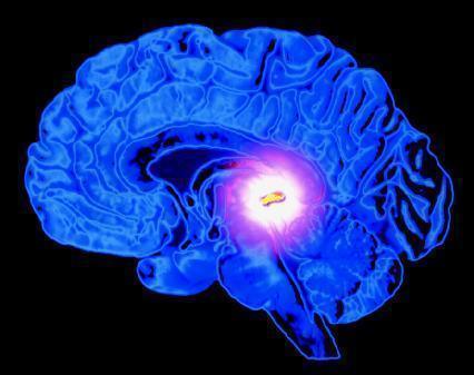 Киста мозга