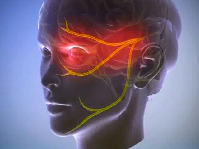 Нервы на лице