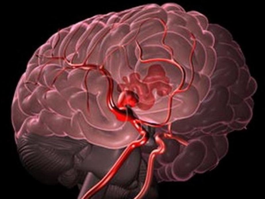 Мозговое кровоизлияние