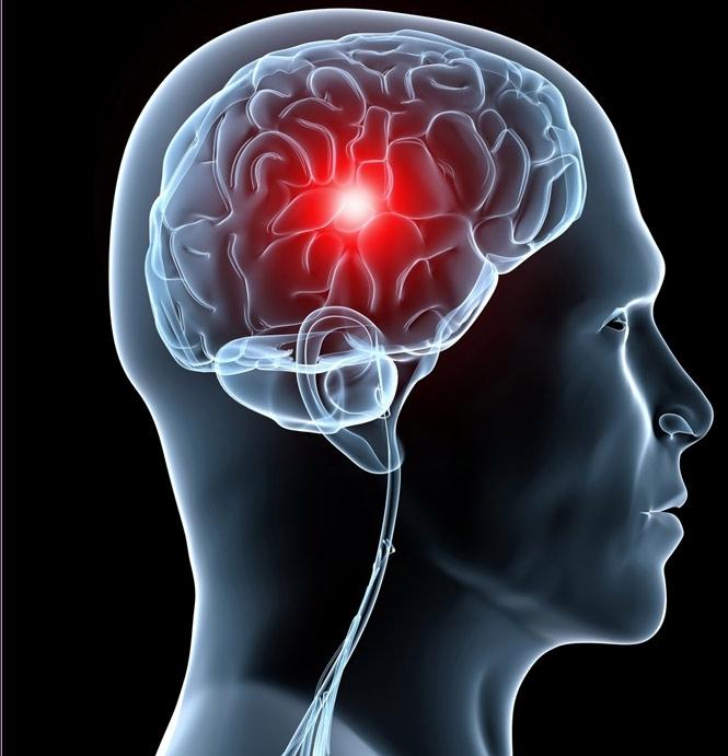 Неврологическое нарушение мозга
