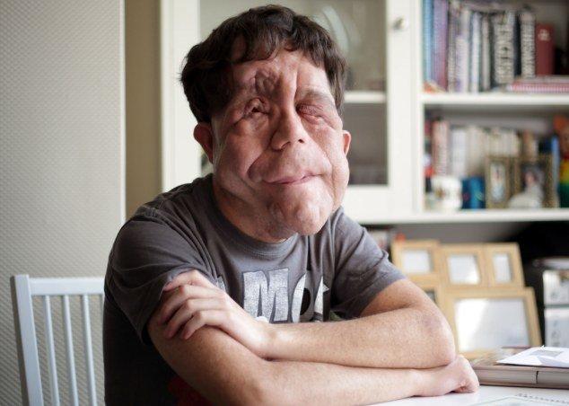 Мужчина с нейрофиброматозом