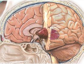 Макет опухоли мозга