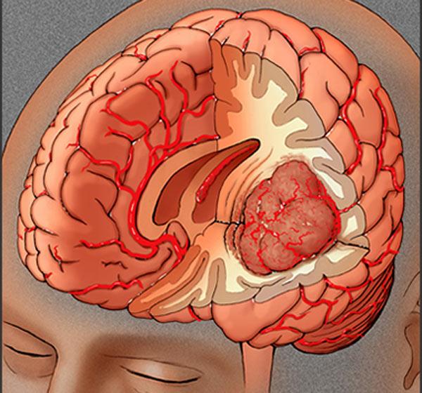 Опухоль в человеческом мозге