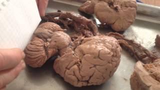 Настоящий продолговатый мозг