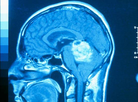 Снимок злокачественной опухоли мозга