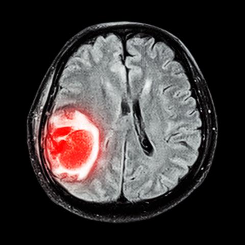 Злокачественная опухоль в мозге