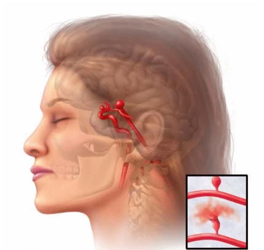 Аневризма в головном мозге