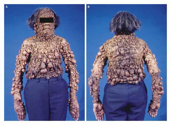Мужчина с синдромом Реклингхаузена