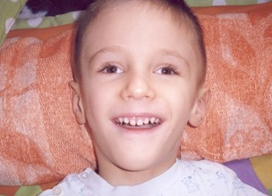 Ребенок с синдромом Арнольда-Киари