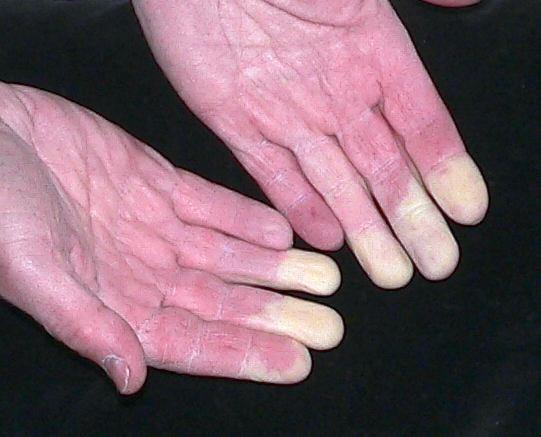 термобелье состоит какое лечение необходимо когда немеют пальцы ног для красоты