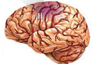 Как выглядит инфаркт мозга?