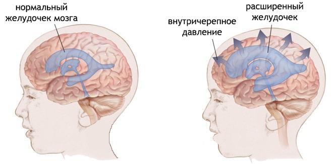Симптомы и диагностика повышенного внутричерепного давления