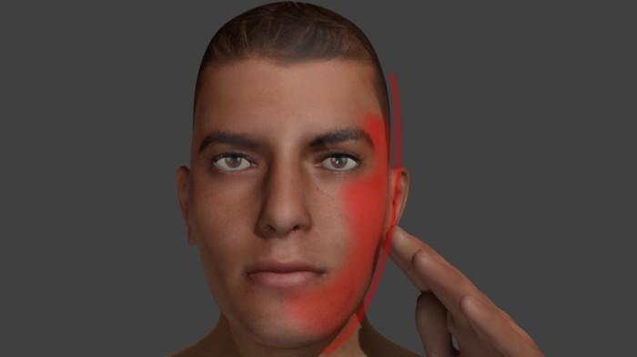 Боль в лицевом нерве