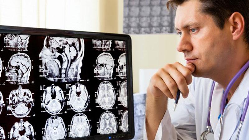 Врач изучает снимок мозга