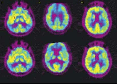 Снимок энцефалопатии в мозге
