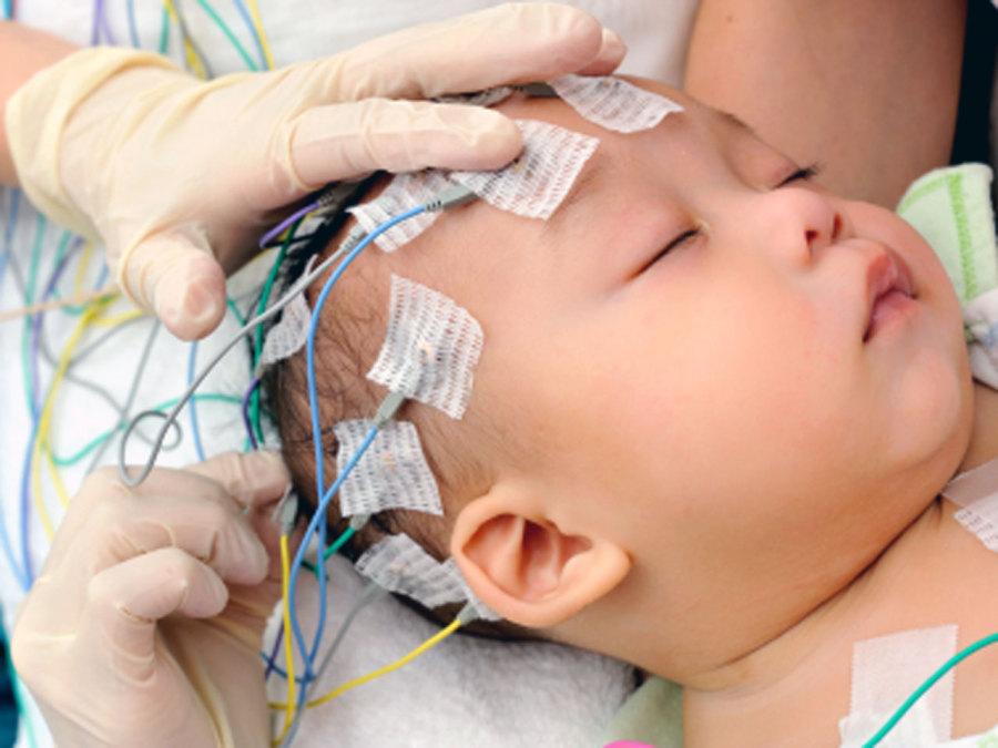 Проведение ЭЭГ мозга младенца