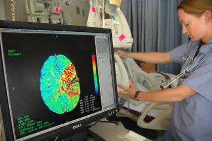УЗИ сосудов в мозге