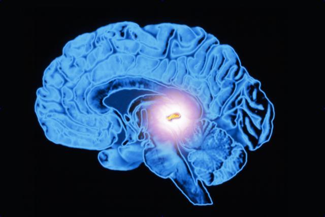 Киста в мозге