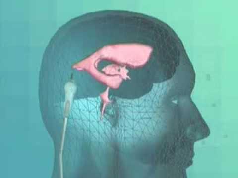 Как проводится шунтирование головы?
