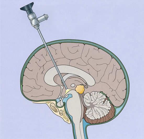 Процесс шунтирования головного мозга