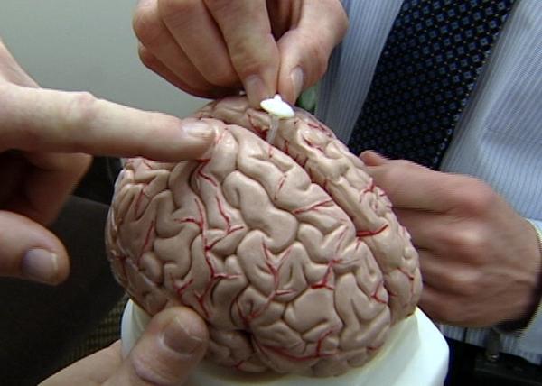 Шунтирование мозга на макете