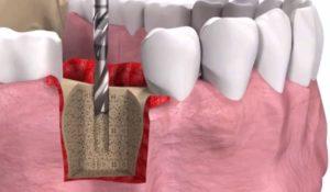 Как устанавливают зубные имплантаты?