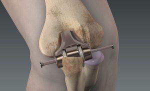 Эндопротезирование коленного сустава: показания и подготовка