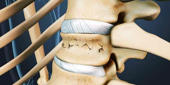 Как восстановиться после перелома позвоночника