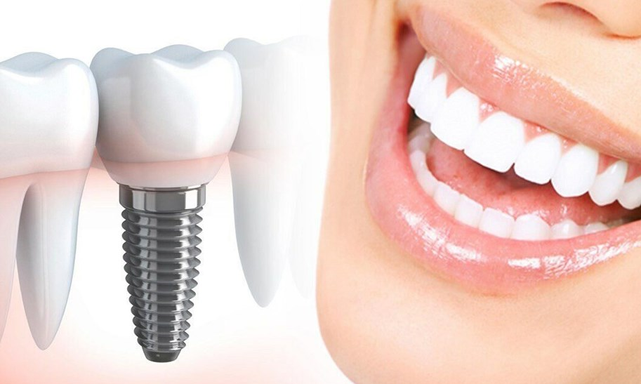 Имплантация зубов у метро Академическая