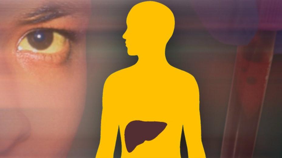 Можно ли вылечить желчнокаменную болезнь